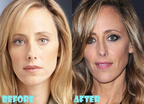 Kim Raver Plastic Surgery