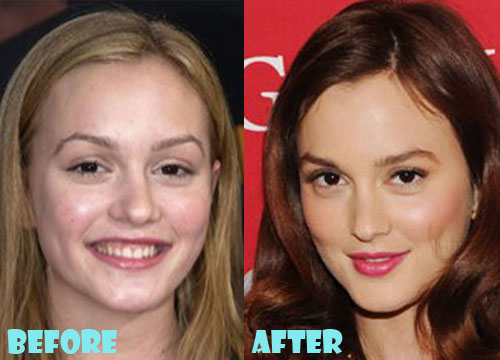 Leighton Meester Plastic Surgery Nose Job