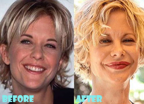 Meg Ryan Plastic Surgery Botox and Facelift