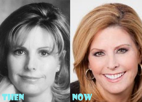 Nina Easton Plastic Surgery