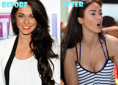 Vicky Pattison Plastic Surgery Breast Implant
