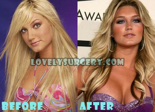 Brooke Hogan Plastic Surgery Breast Implant