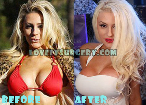 Courtney Stodden Plastic Surgery Boob Job