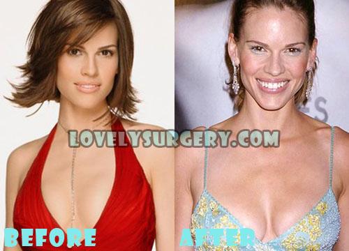 Hilary Swank Plastic Surgery Boob Job