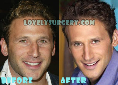 Mark Feuerstein Plastic Surgery Nose Job
