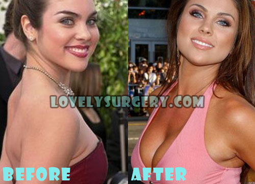 Nadia Bjorlin Plastic Surgery Breast Implant
