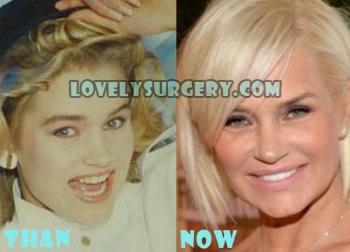 Yolanda Foster Plastic Surgery Botox, Facelift