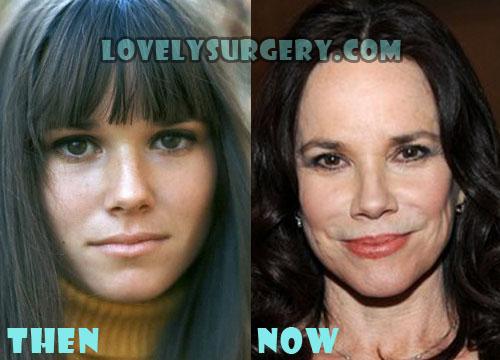 Barbara Hershey Plastic Surgery Botox, Facelift