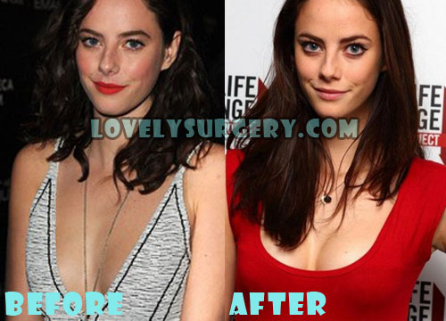 Kaya Scodelario Plastic Surgery Breast Implant