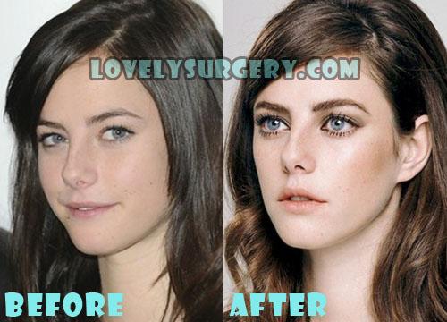 Kaya Scodelario Plastic Surgery Nose Job