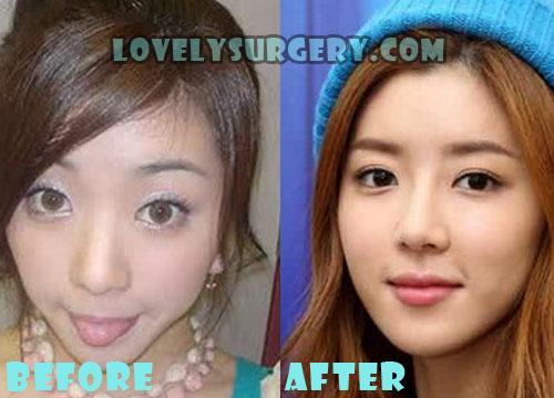 Park Han Byul Plastic Surgery