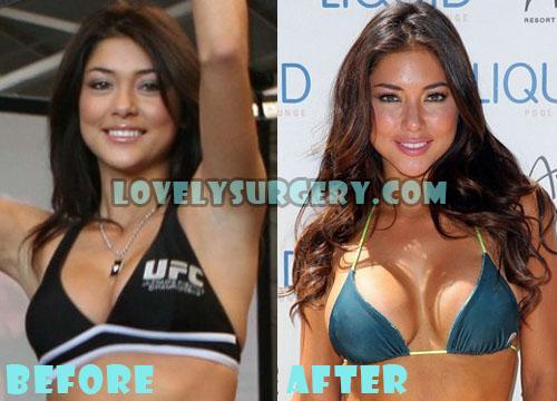 Arianny Celeste Plastic Surgery Boob Job