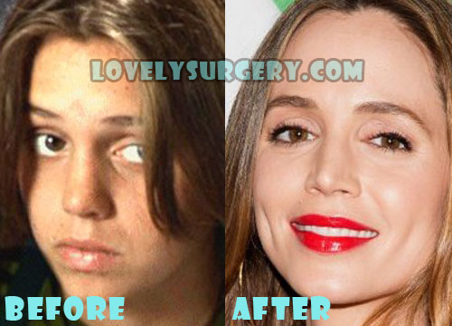 Eliza Dushku Plastic Surgery Nose Job