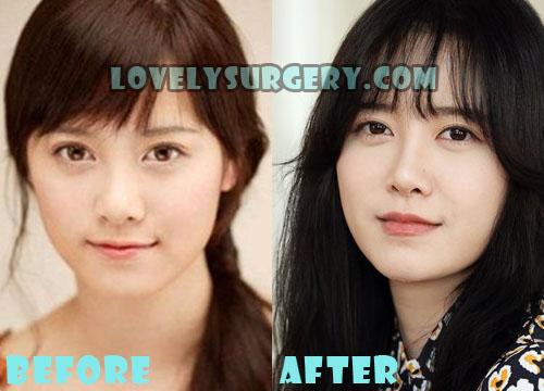 Ku Hye Sun Plastic Surgery Nose Job