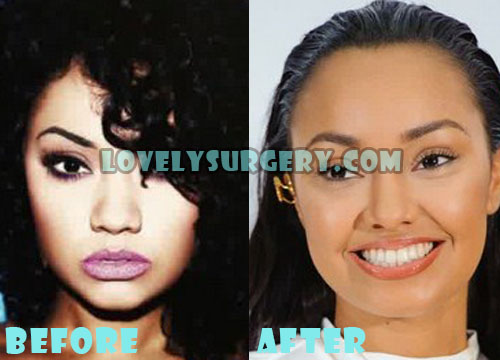 Leigh-Anne Pinnock Plastic Surgery Nose Job