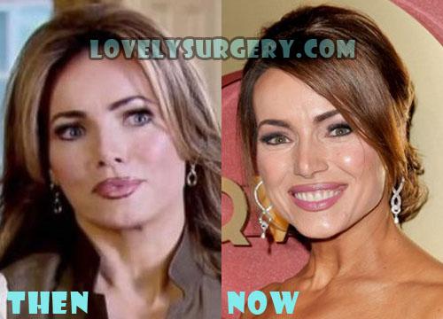 Lisa Robertson Plastic Surgery Botox, Facelift