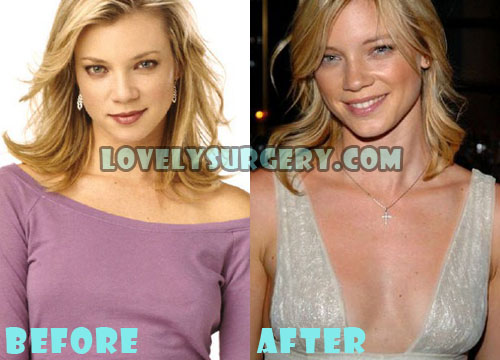 Amy Smart Plastic Surgery Boob Job