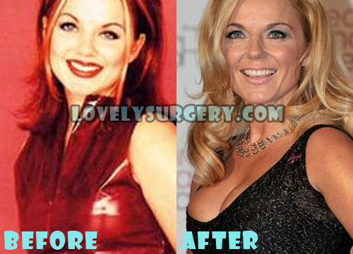 Geri Halliwell Plastic Surgery Boob Job