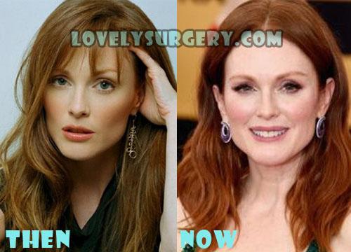 Julianne Moore Plastic Surgery Botox, Facelift