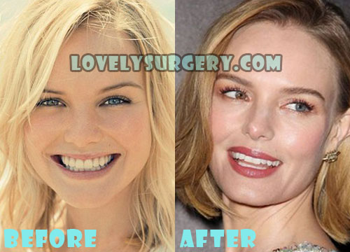 Kate Bosworth Plastic Surgery Rhinoplasty