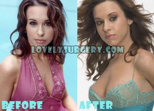 Lacey Chabert Plastic Surgery Boob Job