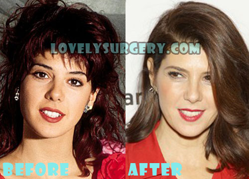 Marisa Tomei Plastic Surgery Nose Job