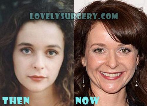 Julia Sawalha Plastic Surgery