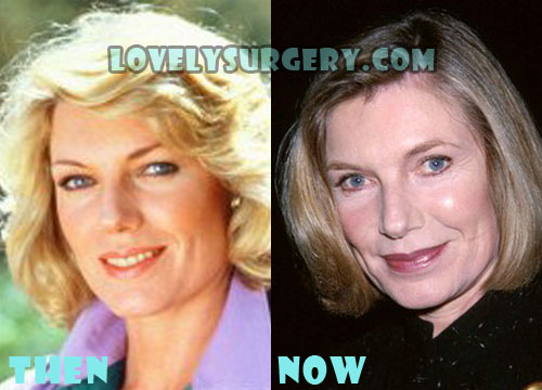 Susan Sullivan Plastic Surgery
