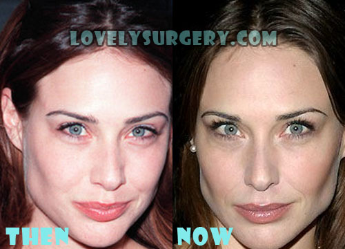 Claire Forlani Plastic Surgery Botox