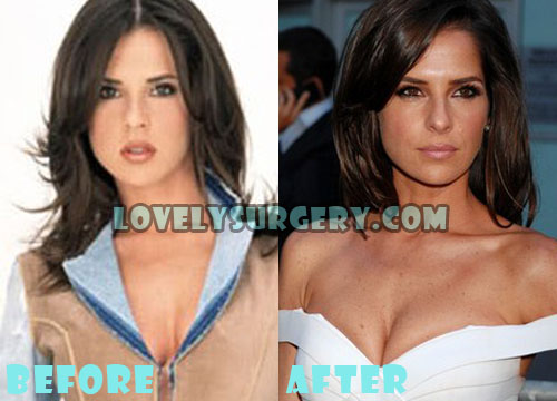 Kelly Monaco Plastic Surgery