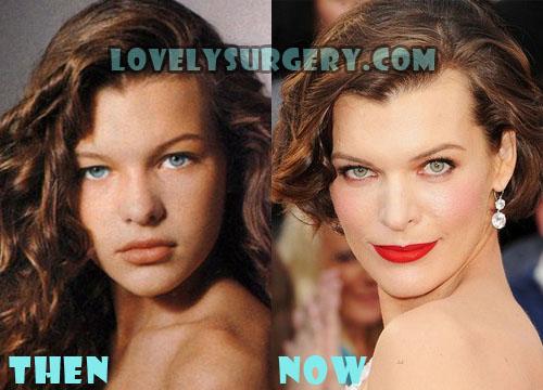 Milla Jovovich Plastic Surgery Botox