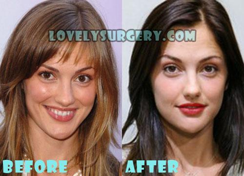 Minka Kelly Plastic Surgery
