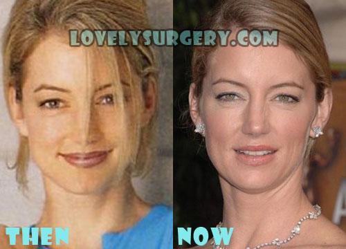 Cynthia Watros Plastic Surgery Botox