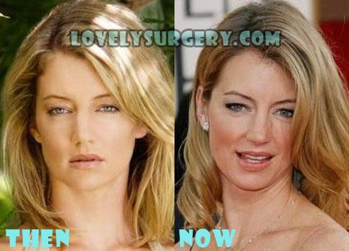 Cynthia Watros Plastic Surgery