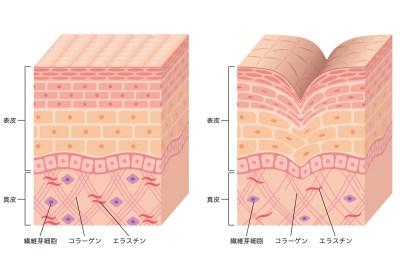 肌の構造 たるみ原因