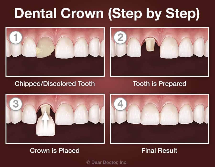 Dental Crowns | Dentist Beaufort SC | Ladys Island Dental Care