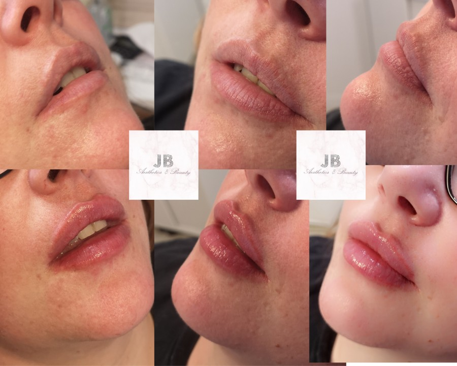 Examples of treatments by JB Aesthetics and Beauty