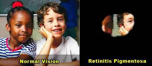 Image of two children seen with normal vision compared to tunnel vision caused by RP