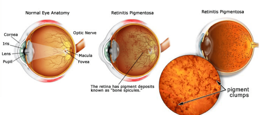 Retinitis pigmentosa eye diagram comparing a normal eye to a retina with pigment deposits