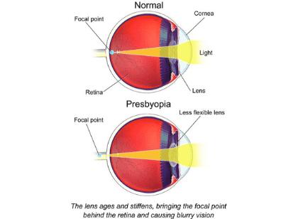 Aging (presbyopia) eye diagram comparing a normal eye to an aging eye