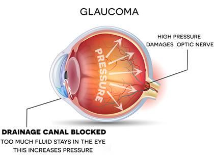 Glaucoma eye diagram