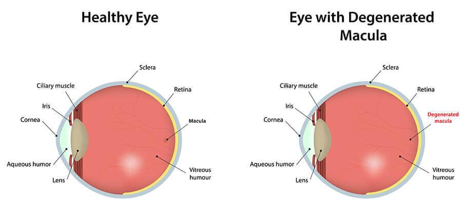 Macular degeneration eye diagram comparing a healthy eye to an eye with a degenerated macula