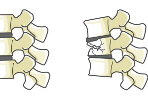 骨粗鬆症、脊柱疾患