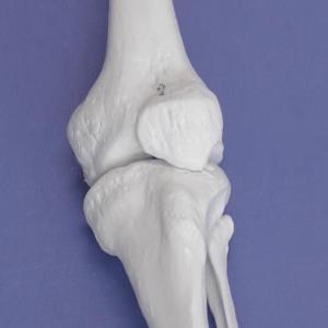 頚骨大腿関節