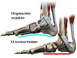 Image result for Дългия малкопищялен мускул