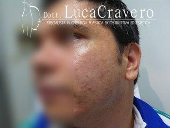 trattamento cicatrici da acne con filler (dopo)