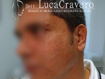 trattamento cicatrici da acne con filler (prima)