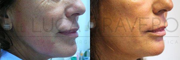 Fili elasticum sostituire caso 1, troppo tagliato, non si vede la risalita dell'angolo mandibolare 25.10.18 2 - Dr. Cravero