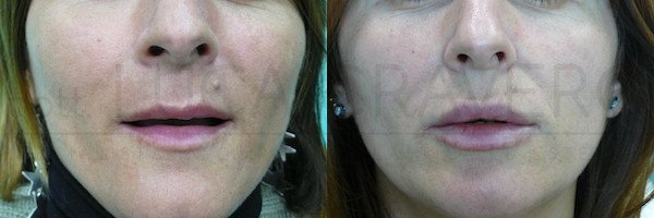 Filler labbra [foto] 01.11.18 1