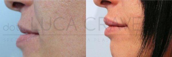 Filler labbra [foto] 1.5 - Dr. Cravero